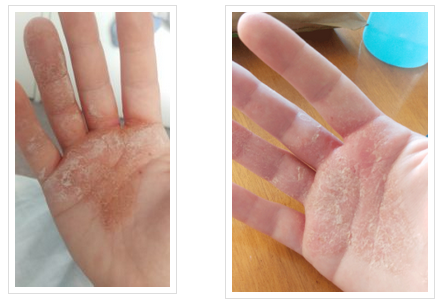How I got rid of eczema.